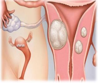Tác dụng An Phụ Khang An Châu trong hỗ trợ điều trị bệnh u xơ , u nang buồng trứng