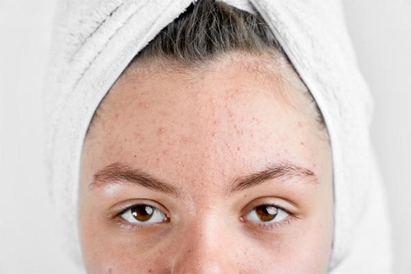 Sức khỏe nội tiết tố quyết định tới vẻ đẹp của làn da phái đẹp